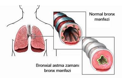 Bronxial Astma Xesteliyi