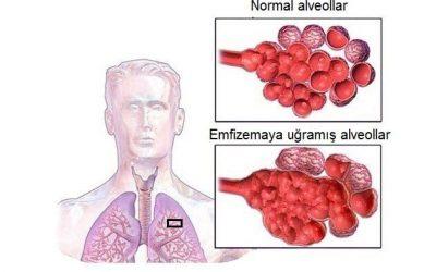 Emfizema - Ağciyər Emfizeması