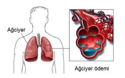 Ağciyər ödemi